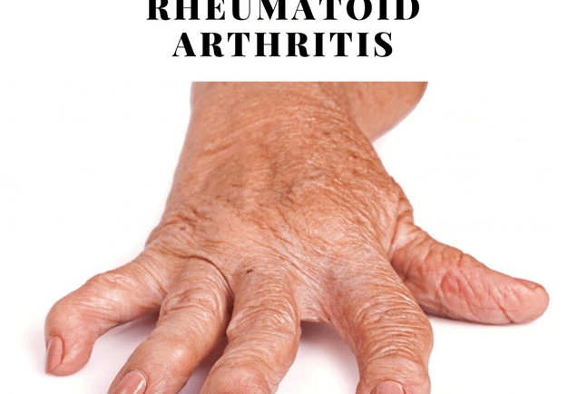 Rheumatoid Arthritis Treatment Through Naturopathy